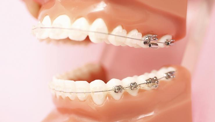 歯の表面に装置をつける、もっともオーソドックスな治療法です